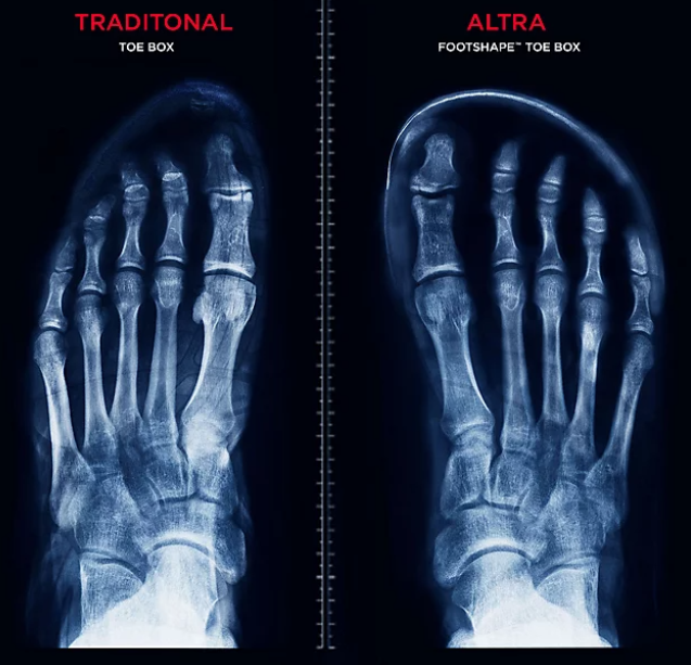 Xray of Traditional VS Footshape Toe Box